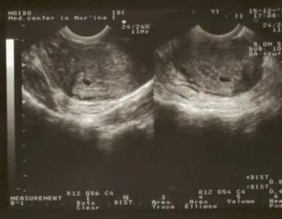 Можно ли не заметить беременность на узи