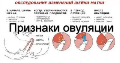 Какие симптомы могут быть при овуляции