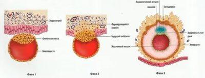 На каком сроке оплодотворенная яйцеклетка прикрепляется к матке