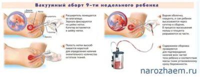 Можно ли забеременеть сразу после вакуумного аборта
