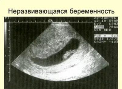 На каком сроке чаще всего замершая беременность