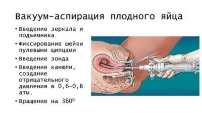 На каком сроке можно делать вакуумный аборт
