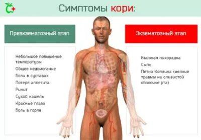 Какие признаки заболевания кори