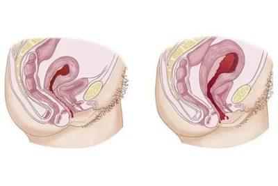 Сколько по времени сокращается матка после родов