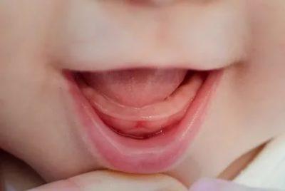 Какие симптомы при прорезывании зубов