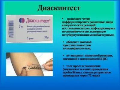 Что такое прививка Дст