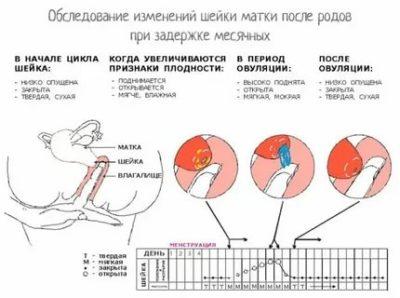 Когда восстанавливается менструальный цикл после родов