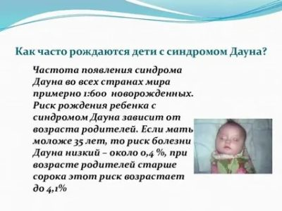 Когда рождается ребенок с синдромом Дауна