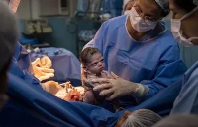 На каком сроке беременности можно делать кесарево сечение