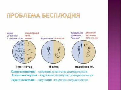 Как можно узнать о бесплодии