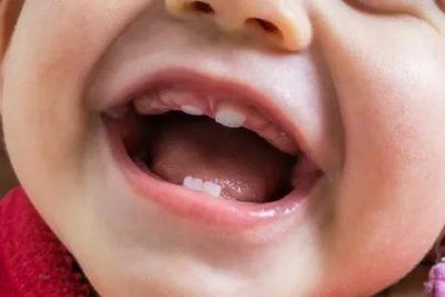 Когда начинаются зубы у грудничков
