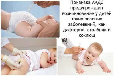 Куда делают прививку Акдс ребенку