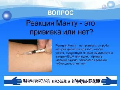 Почему нельзя мочить прививку Бцж