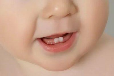 Сколько времени прорезается первый зуб у ребенка