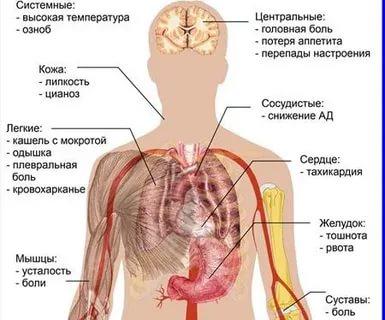 Как узнать есть ли у ребенка пневмония