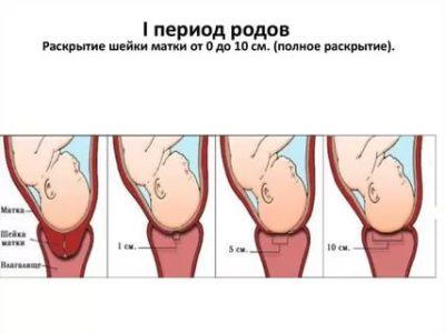 Сколько дней созревает шейка матки перед родами
