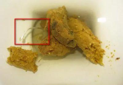 Как определить есть ли у ребенка глисты