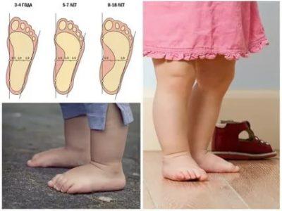 Что такое плоскостопие у детей